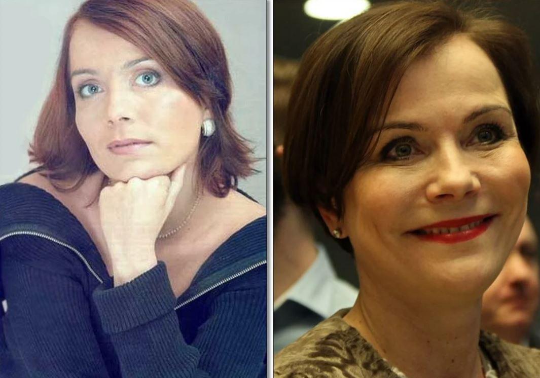 Юлия началова фото до и после пластики родителей будущего
