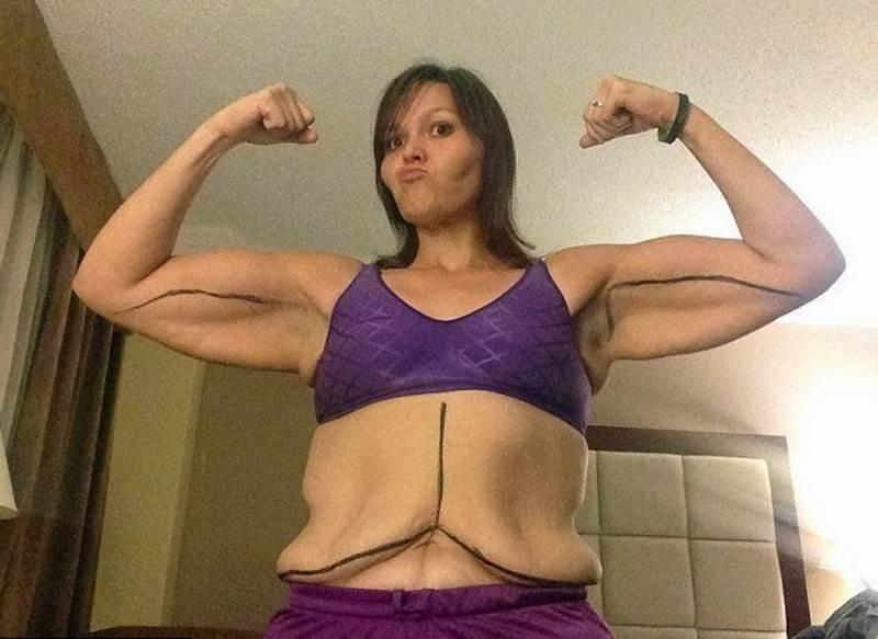 Обвисшие груди после похудения фото