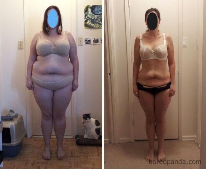 Результаты Резкого Похудения. Потеря веса: причины резкого снижения веса и что делать
