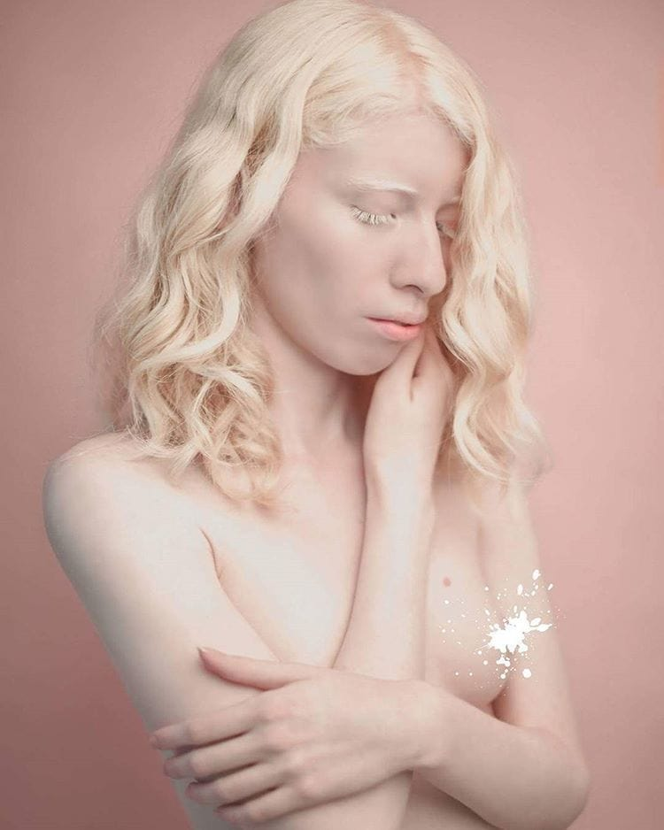 Albino sex photo — photo 8