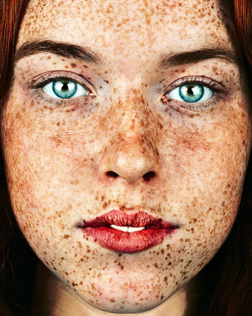 Facial freckles beauties