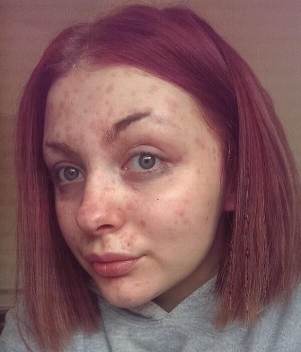 Когда ее парень узнал об этом, он ее бросил…Под слоем макияжа она скрывала…