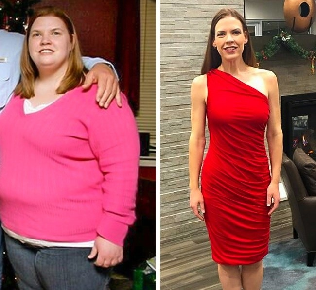Очень Сильно Похудел Фото. Реальные люди, которые похудели на 15-50 кг (фото до и после)