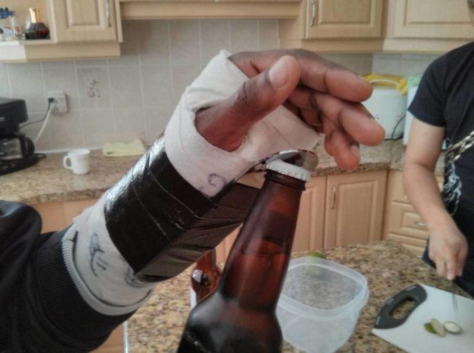 соответствии общим прикольные картинки с переломом руки лимонная имеет отличный