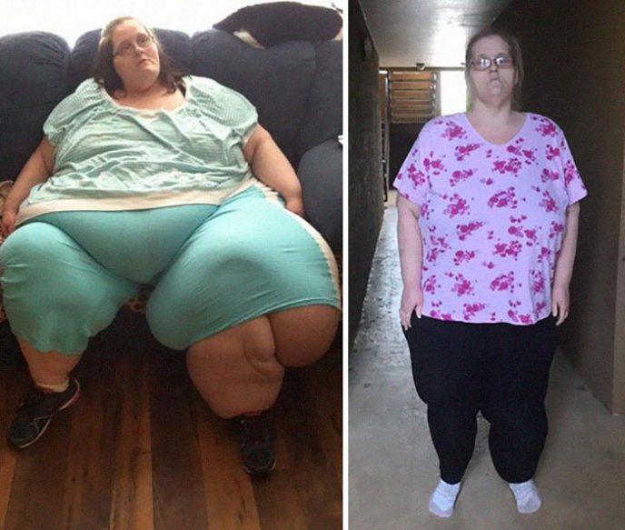 20 фото до и после похудения, которые доказывают, что возможно все