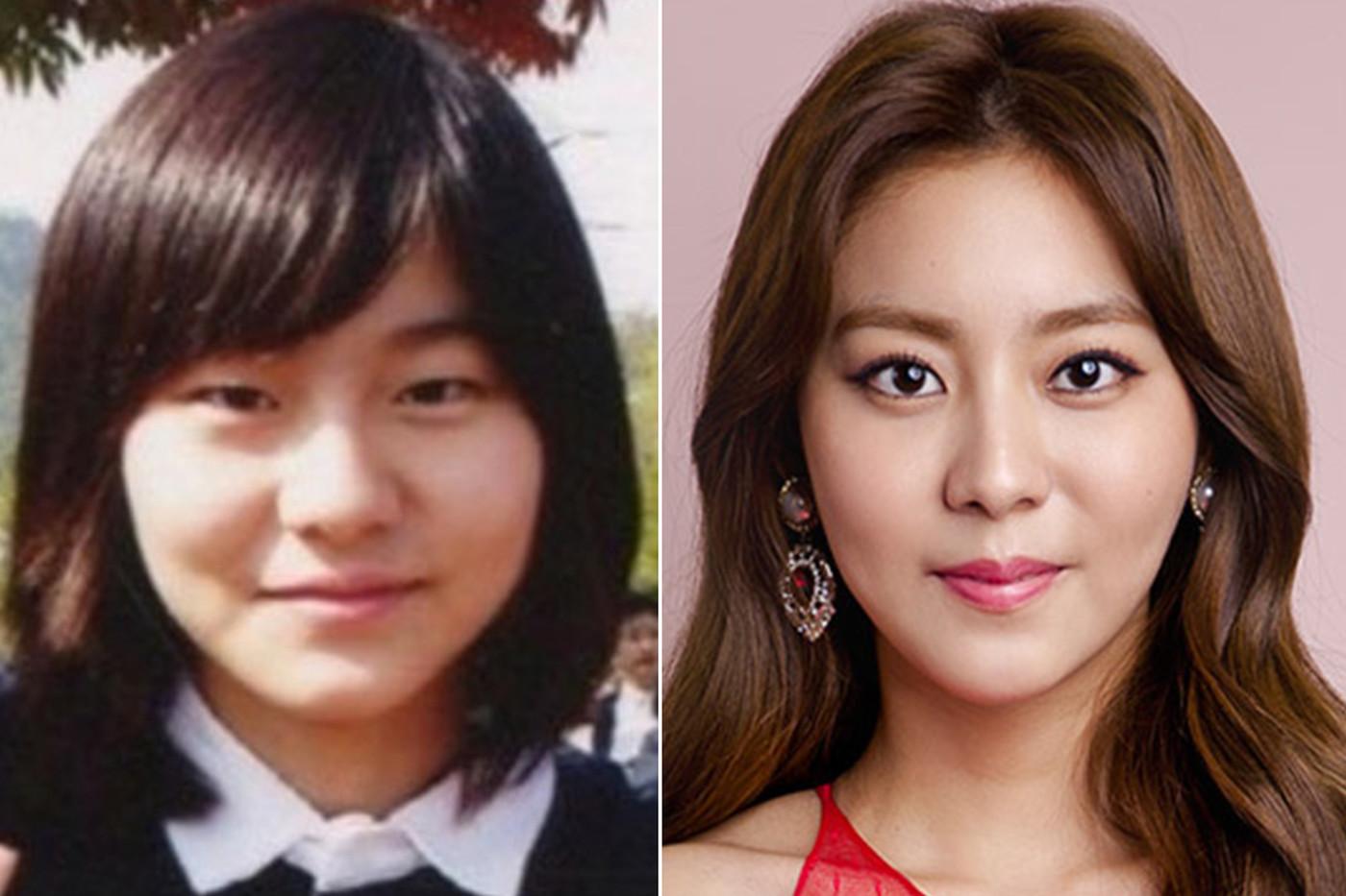 фотографии корейских звезд до и после пластики цвет